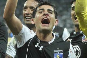 Julio Barroso, Colo Colo, Corinthians, fractura nasal, operado el lunes