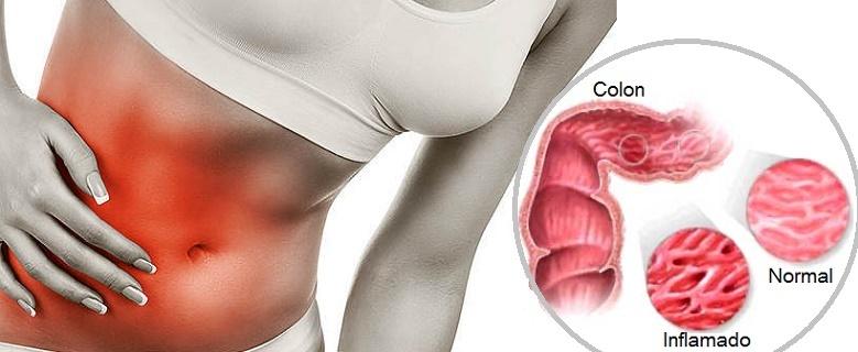 8 datos del colon irritable que de seguro no sabías - El ...