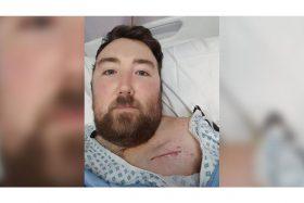 Increíble, este hombre sufrió cuatro infartos en un mes y aún está vivo. Conoce la historia completa en la nota